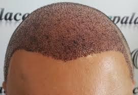 saç ekim merkezleri, en iyi saç ekim merkezleri