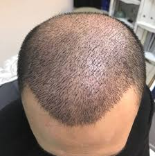 saç ekimi, istanbul saç ekimi, istanbulda saç ekimi farkı