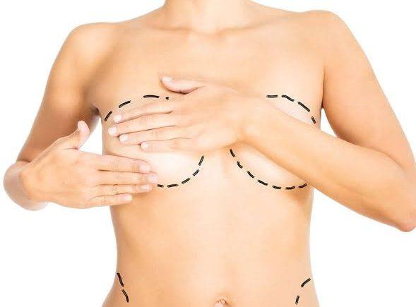 göğüs küçültme ameliyatı, göğüs küçültme ameliyatı teknikleri, göğüs küçültme ameliyatı öncesi