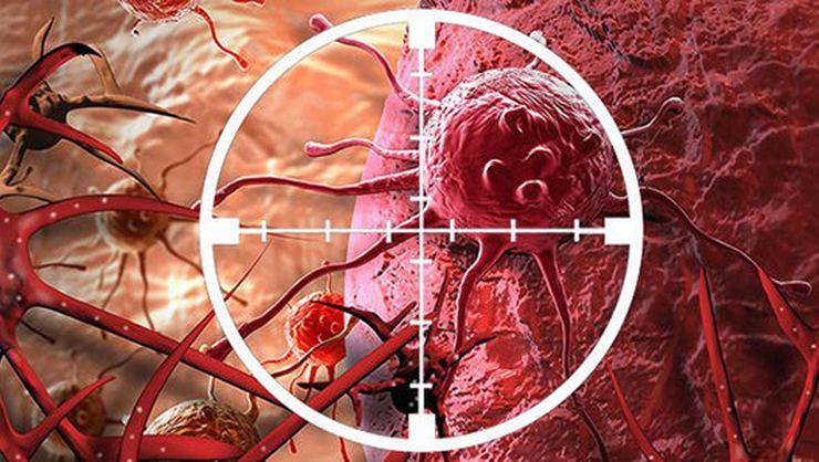 küçük hücreli akciğer kanseri tedavisi, akciğer kanseri türleri, akciğer kanseri tedavisi