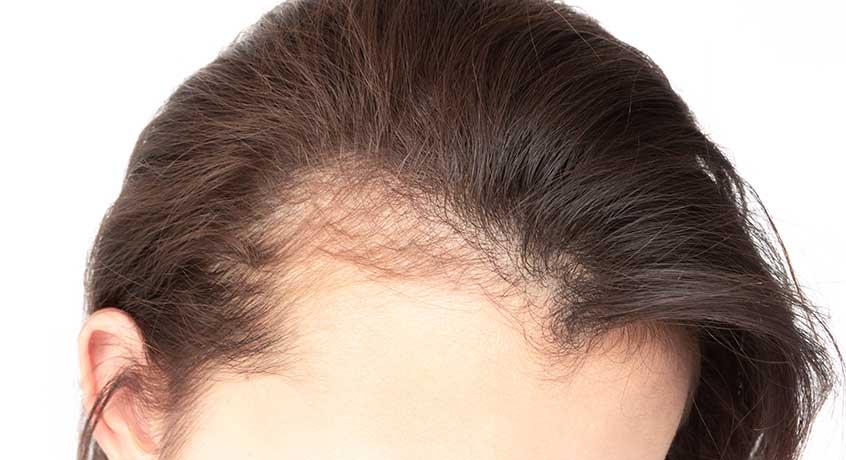 kadınlarda saç ekimi, kadın saç ekim operasyonu, kadın saç dökülmesi