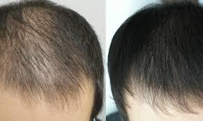 saç ekiminden sonra, saç ekimi sonrası nasıl, saç ektirme